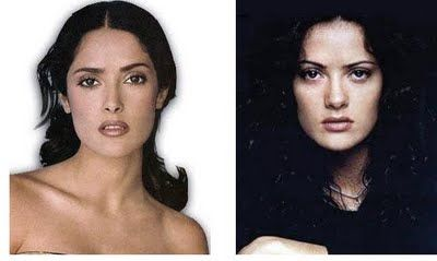 Salma Hayek Before After Pictures Aesthetic Treatment