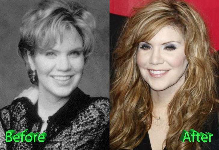 Alison Krauss Before After Facelift, Fillers Photo
