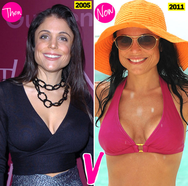 Bethenny Frankel Breast Implants Failed Prior To and After