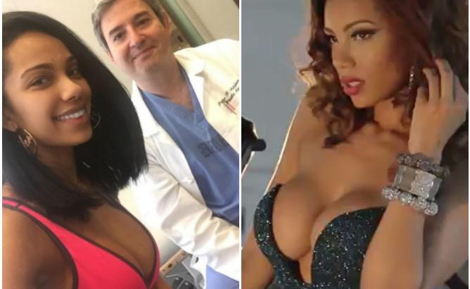 Erica Mena Plastic Surgery