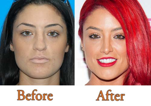 Eva Marie Nose Job Before After Surgery