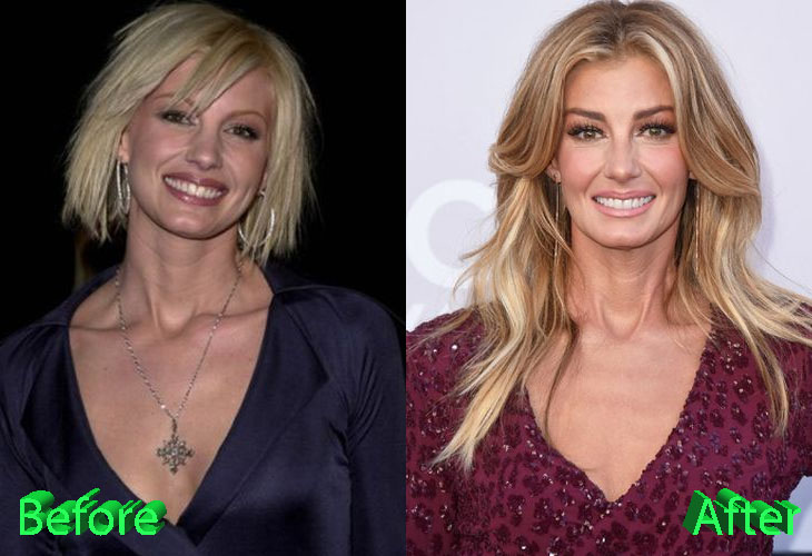 Faith Hill Plastic Surgery, Facelift