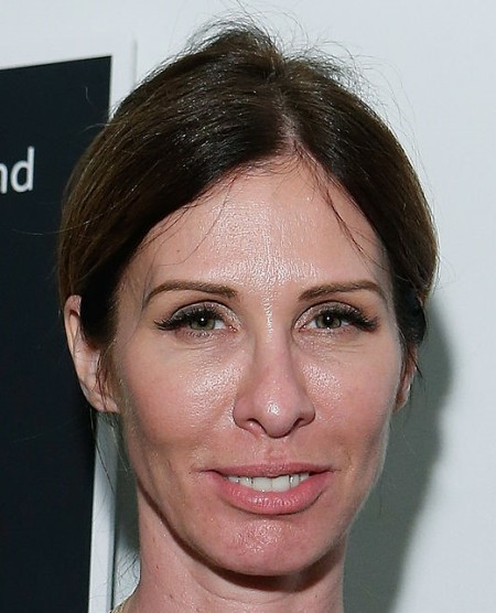 Carole Radziwill Facelift, Eyelift Photo