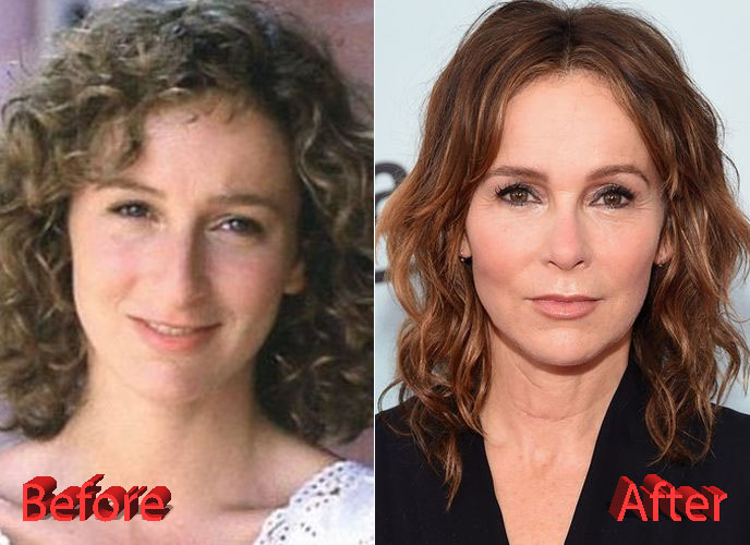 Jennifer-Grey-Nose-Job-Transformation