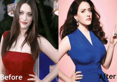 Kat Dennings Plastic Surgery, Boob Job, Before After Picture