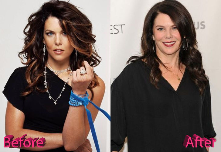 Lauren Graham Before After Surgery Photos