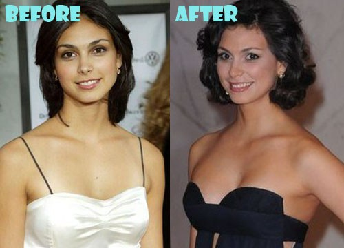 Morena Baccarin Plastic Surgery, Before After Picture