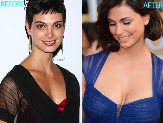 Morena Baccarin Plastic Surgery