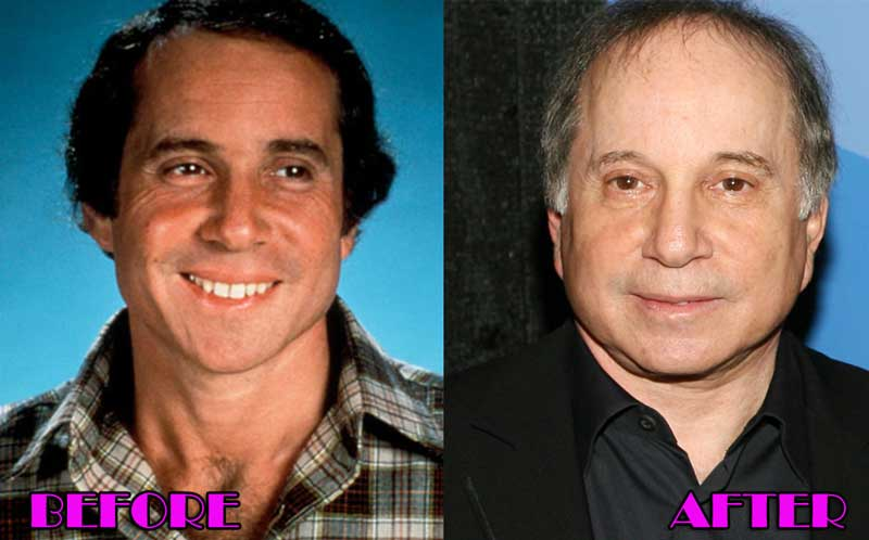 Paul Simon Facelift