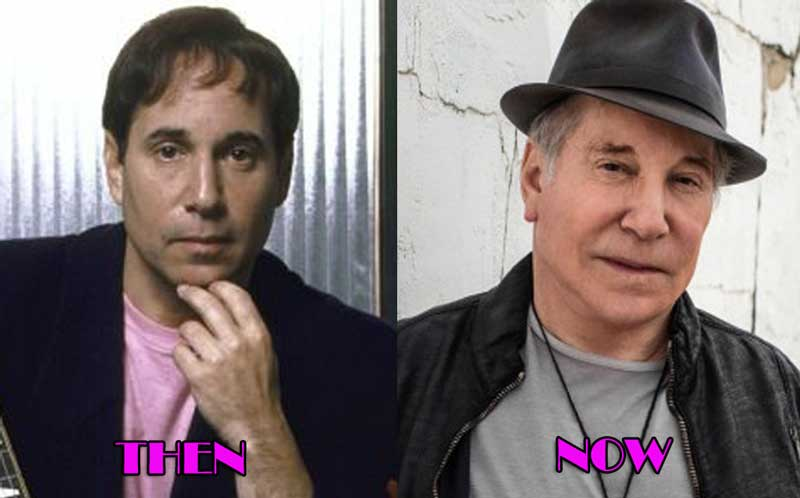 Paul Simon Plastic Surgery, Facelift Photo
