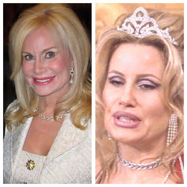 Annabel Bowlen Facelift, Fillers, Then and also Now Photo