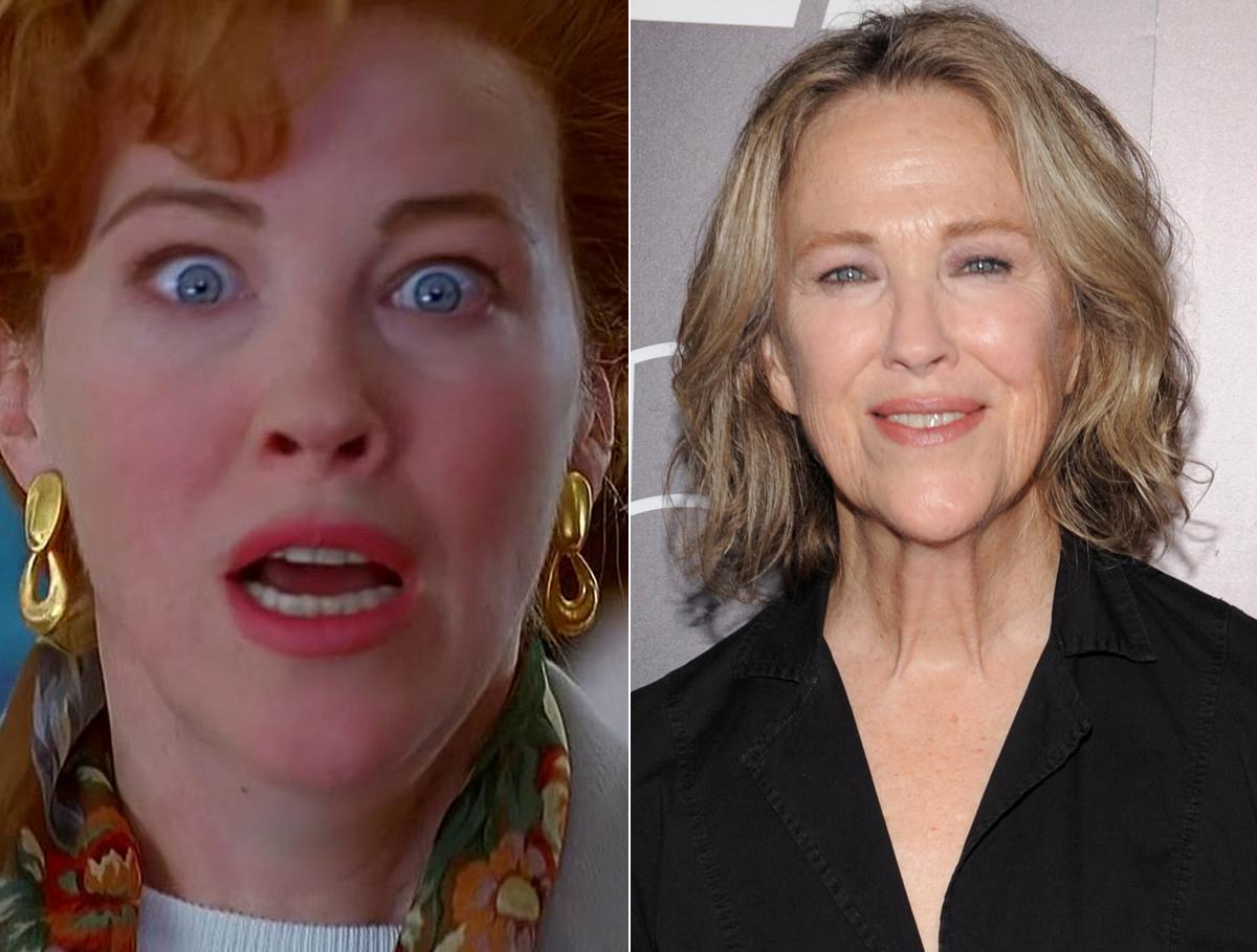 Catherine O'hara Facelift, Filler, Then as well as Now Photo