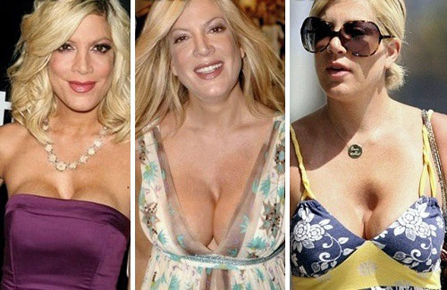 Tori Spelling Breast Enhancement Catastrophe Images