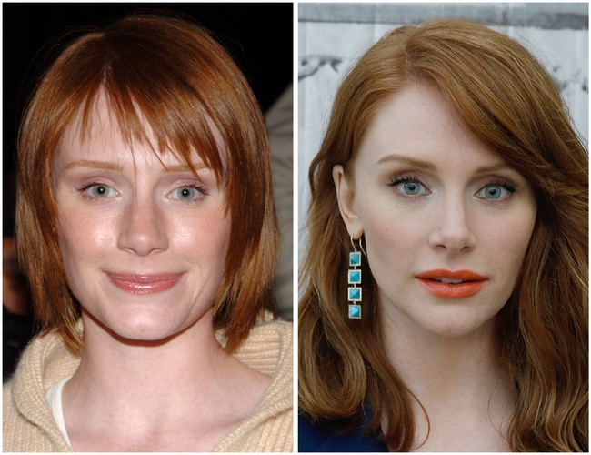 Bryce Dallas Howard is unarguably among one of the most gorgeous Hollywood celebrities. Nonetheless, that she has excellent genetics does not quit her cosmetic surgery problem. Or, can we claim she herself can not stand up to plastic surgery lure? Real, she has actually been an all-natural appeal given that she was young. However we could conveniently detect distinctions on several of her face functions. The distinctions are uncommon that make it unsubstantiated they are triggered by all-natural variables. That smaller sized nose is simply an additional most likely outcome of Bryce Dallas Howard cosmetic surgery. Really, Ron Howard's little girl has actually been bordered by cosmetic surgery report given that years back. Her altering face is resource of the problem. As well as to this day, she continuously reveals uncommon face look. What has she had? Bryce Dallas Howard's boobs are sights yet first of all allow's speak about improvement on her face. Some might protect her, yet Bryce Dallas Howard nose task is difficult to shoot down. Her Before as well as After image perfectly defines the nose modification. The old image recorded larger nose bridge. Nonetheless, this component of her nose seems the only component that got the procedure. Howard's existing nose looks smaller sized as a result of the minimized nasal bridge. We understand make-up could do the technique, briefly. Nose job or nose surgery is the only approach that we understand provides irreversible outcome. Well, nose surgery makes points far better. Bryce Dallas is unquestionably a lot more gorgeous with her brand-new nose, isn't really she? Next to her nose, Bryce Dallas Howard's age appears to be one more factor that compelled her to check out plastic surgery facility. She is 36 years of ages. It is regular for her to stress over aging lines strike. Several on-line records recommend that she has actually infused her confront with Botox. That unblemished face skin looks ideal without folds and also great lines. Bryce Dallas Howard Plastic Surgery Bryce Dallas Howard Boob Job, Before After Photo Bryce Dallas Howard Boob Job Comparable with the nose surgery, breast implants likewise developed substantial adjustment to her physical appearance. Yet by contrasting her photos we could state that she is not a follower of large breast enhancement. Unlike Mary McDonnell as well as Alyssa Milano, Bryce Howard took appropriate dimension that preserves her all-natural appearance. She is reported having 34B mug dimension. That's fairly not a large dimension however is best for her number. Do you concur? Her silence makes the problem a warm subject up until today. Usually talking, starlet that depicted personality Victoria in The Twilight Saga: Eclipse is far more various compared to before. Do you additionally believe that Bryce Dallas Howard cosmetic surgery should not occur?