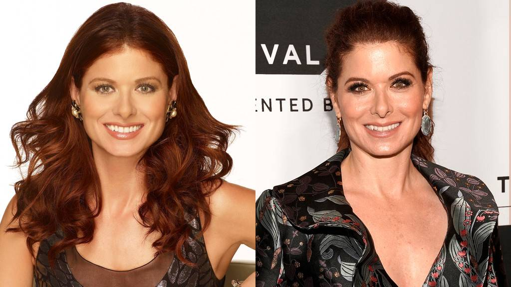 Debra Messing Nose Job, Botox Filler Photo