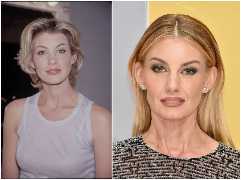 Faith Hill Plastic Surgery, Facelift Botox Photo