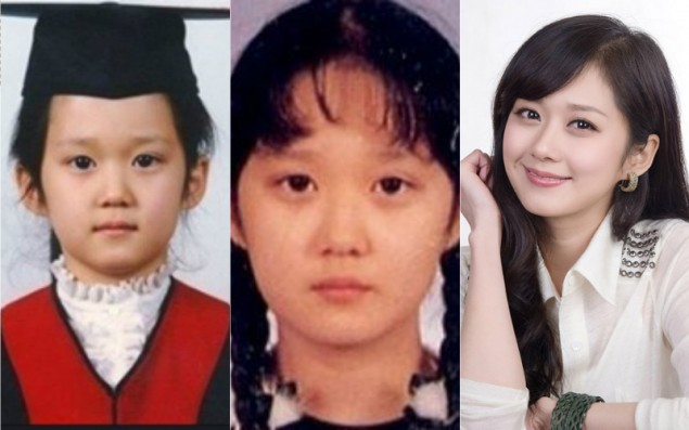 Jang Nara Nose, Eyelids, Then and Now Photo