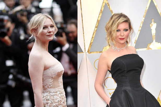 Kirsten Dunst Plastic Surgery, Botox Before After