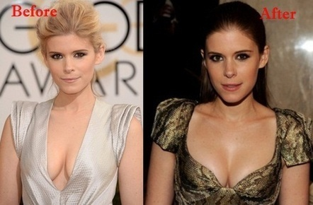 Kate Mara Boob Job Photo, Before and also After