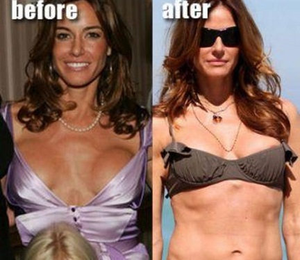 Kelly Bensimon Bad Boob Job Fail - Photos