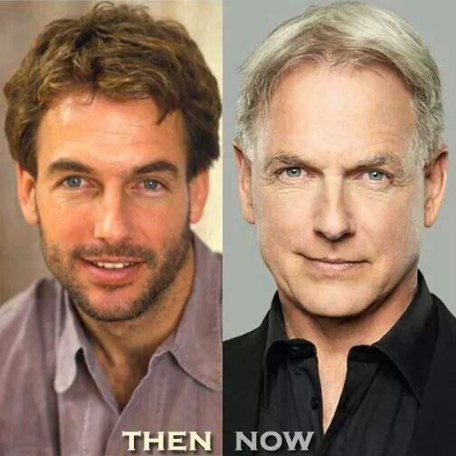 Mark Harmon Plastic Surgery