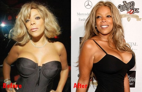 Wendy Williams enLARGEments