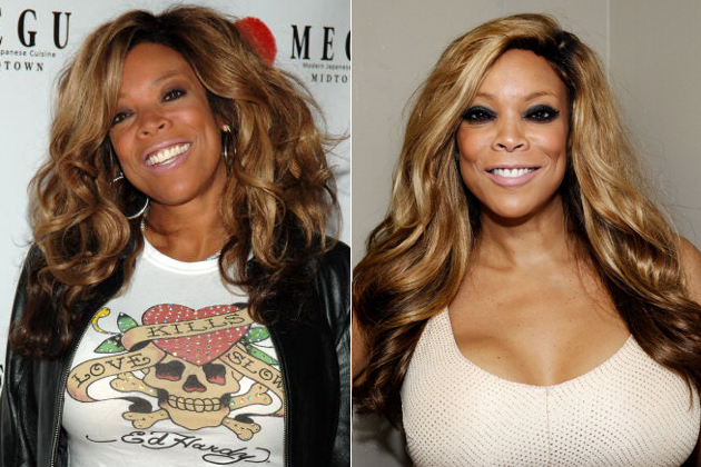 Wendy Williams breast before and after