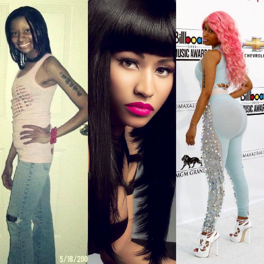 Did Nicki Minaj Get Breast & Butt Implants