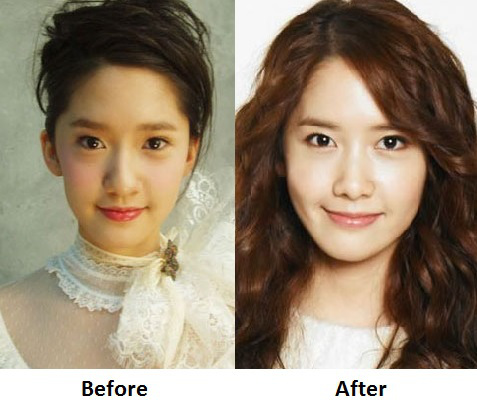 Did 'Yoona' Plastic Surgery?