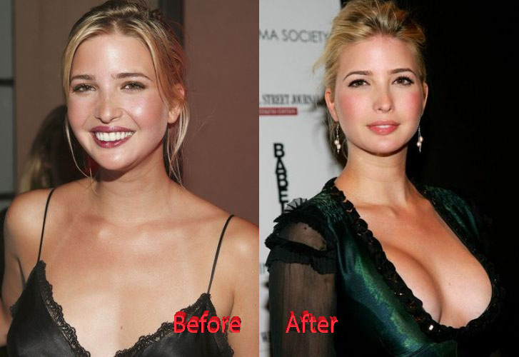 Does Ivanka Trump Have Breast Implants?