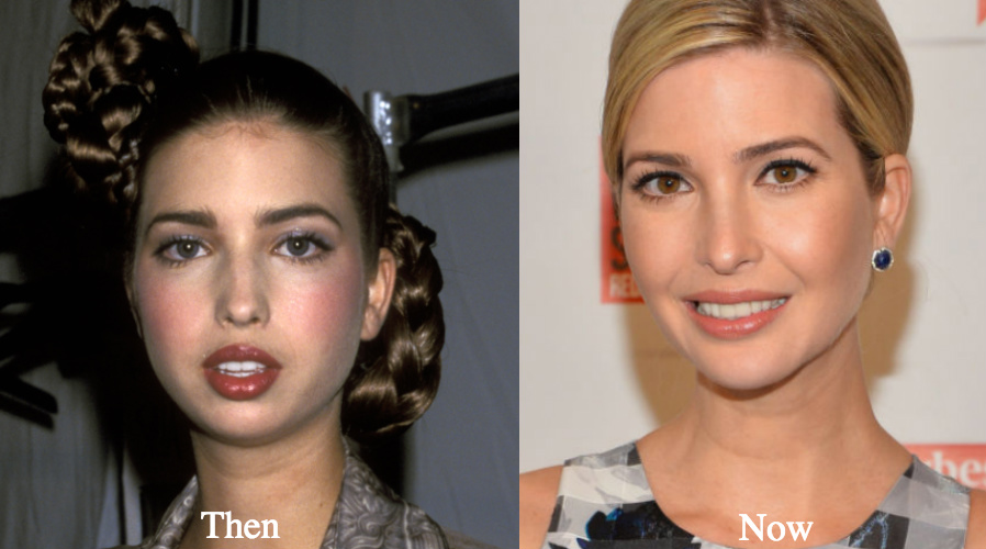 Did Ivanka Have A Nose Job?