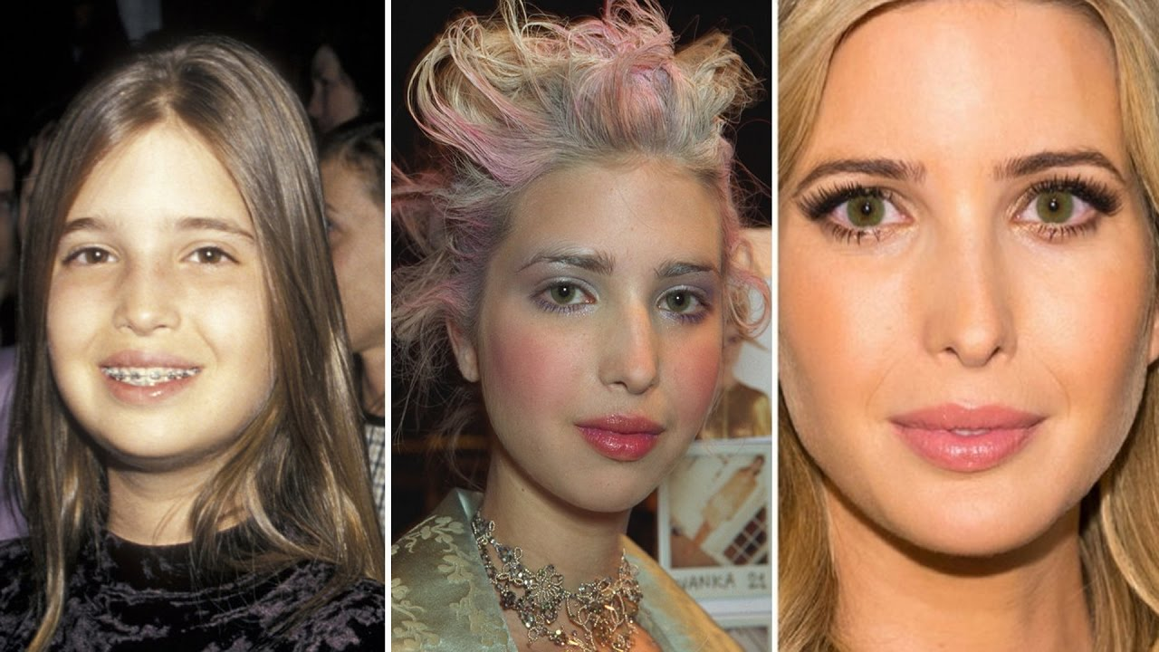 ivanka trump before and after