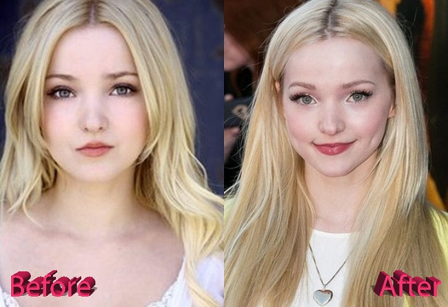 Dove Cameron Nose Job And Lip Injections