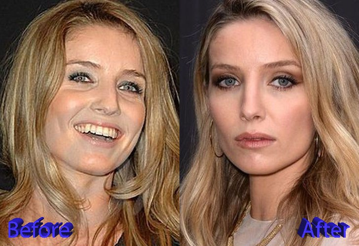 Annabelle Wallis's Before And After Nose Job Pictures