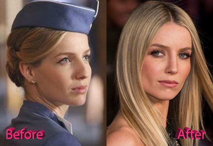 Aloha Taylor Before And After Plastic Surgery Photos Celebrity