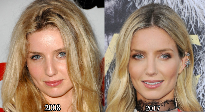 Annabelle Wallis's Nose Job - The Surgery Rumors Are True!