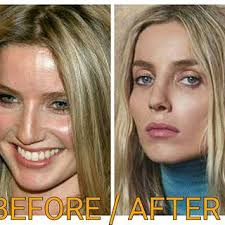 Annabelle Wallis's Nose Job