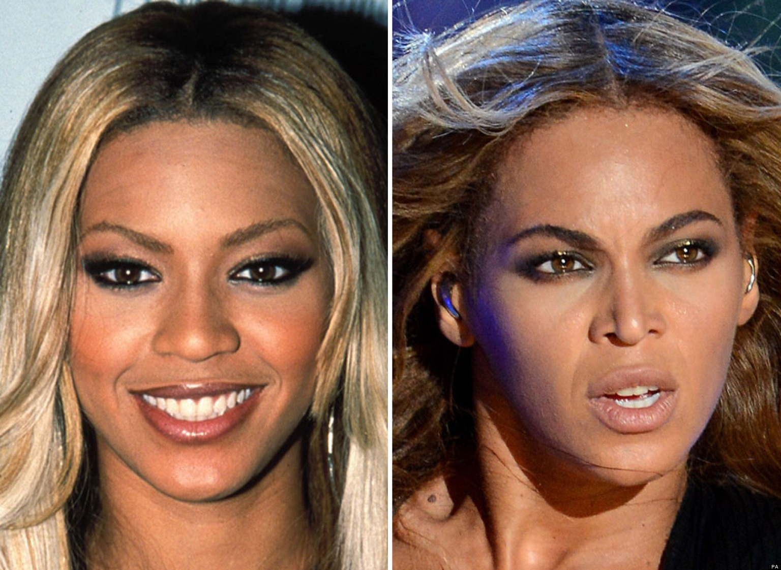 Beyonce Before And After Plastic Surgery Pics
