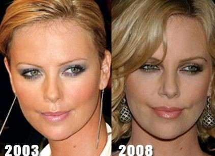 Charlize Theron Nose Job – Before And After Photos