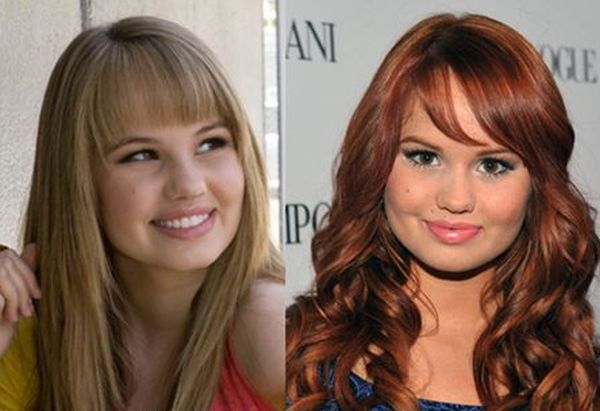 Debby Ryan Plastic Surgery Before And After Photos
