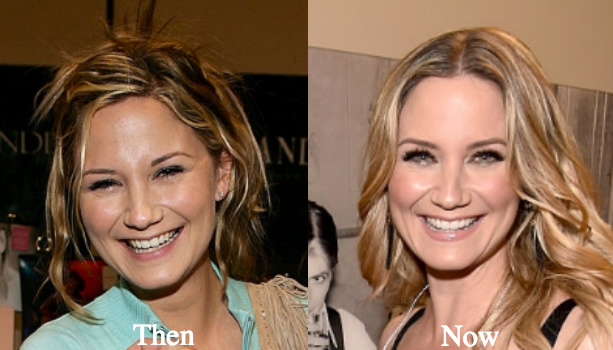 Jennifer Nettles Surgery Rumors – Have She A Nose Job