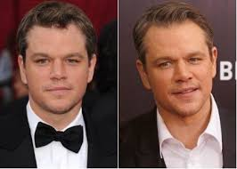 Matt Damon Nose Job - Before And After Surgery Photos