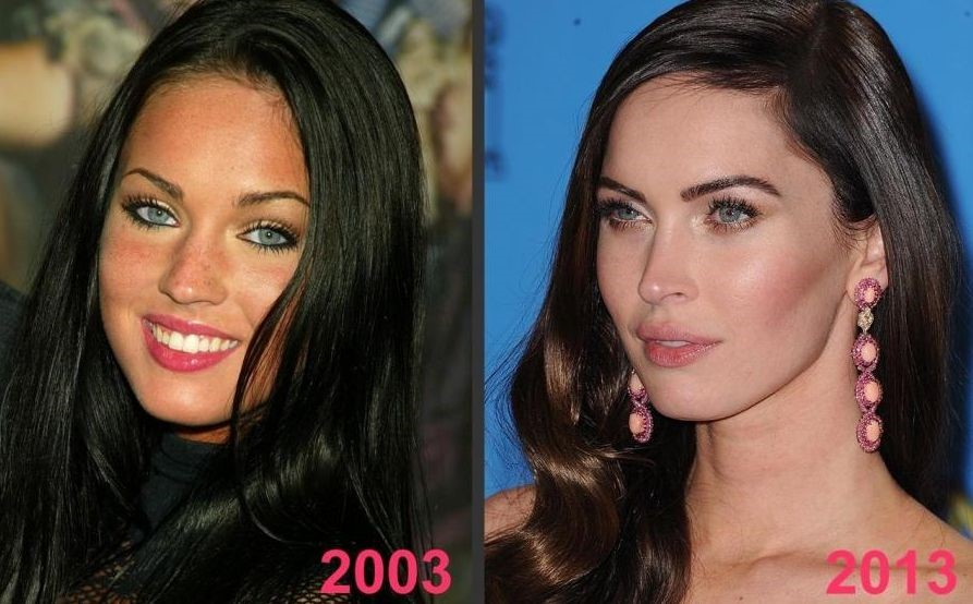 Megan Fox Before After Plastic Surgery Photos