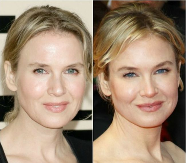 Renée Zellweger Plastic Surgery Photos Before After