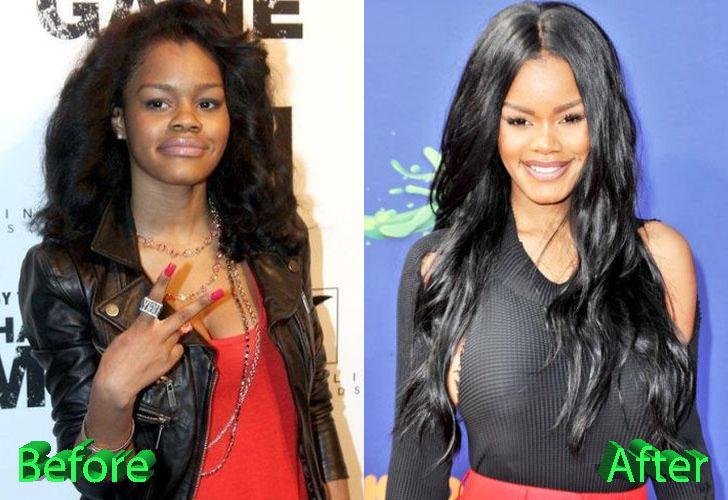Teyana Taylor Plastic Surgery:
