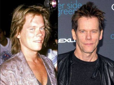 Kevin Bacon Nose Job Before And After Photos
