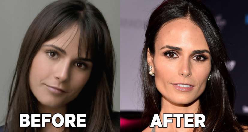 Jordana Brewster Surgery Rumors Photos Before And After