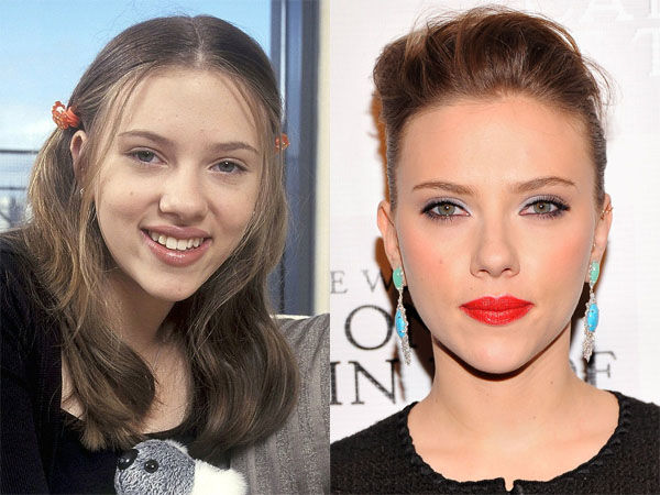 Scarlett Johansson Before and After Plastic Surgery Photos