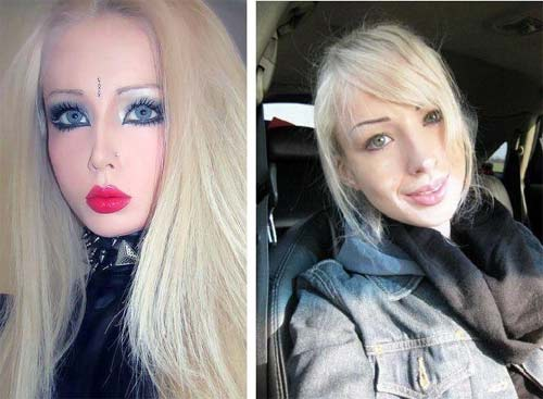 Valeria Lukyanova – Before After Plastic Surgery Photos