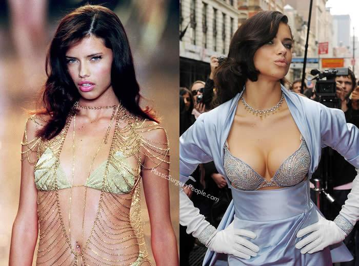 Has Adriana Lima Had Breast Implants?